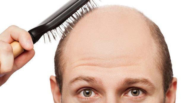 Fatores que podem levar a queda de cabelo.