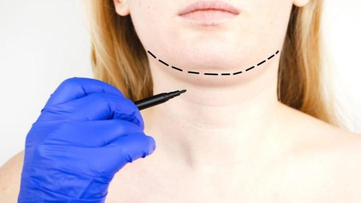 """4 maneiras de evitar a famosa """"papada"""" e ter um pescoço invejável"""