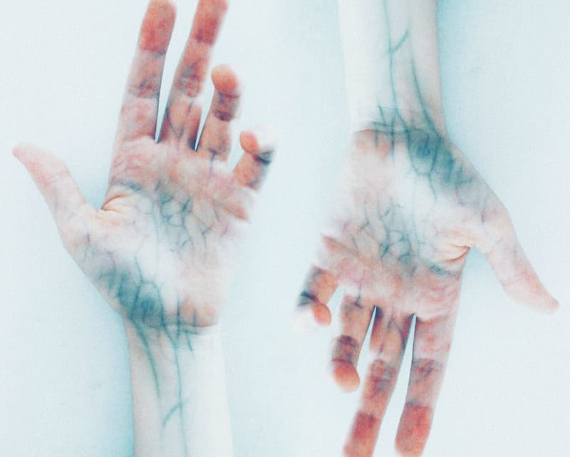 O que é, como se manifesta e como tratar a insuficiência venosa crônica